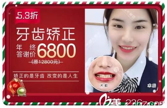 广州曙光口腔医院牙齿矫正费用6800元