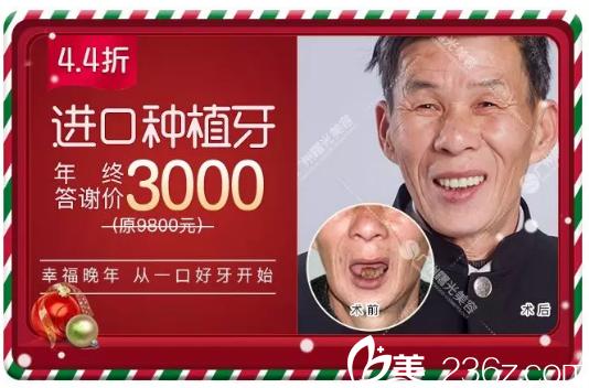 广州曙光口腔科种植牙3000元附案例