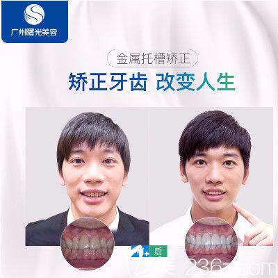 广州曙光口腔医院牙齿矫正哪里