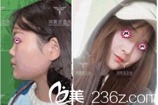 北京润美玉之光张红芳鼻子案例