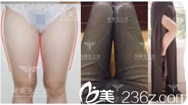 北京润美玉之光张红芳医生腿部吸脂案例