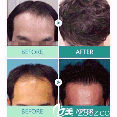 广州肤康皮肤科医院植发案例
