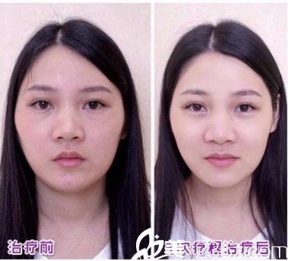 广州肤康皮肤科医院光子嫩肤案例
