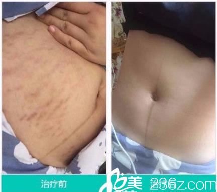 广州肤康皮肤科医院激光祛妊娠纹案例