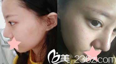 在昭通民众医院整形美容科做了光学美白嫩肤后 改善了我的色斑痘印暗黄肌