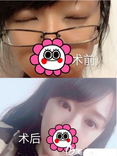 武汉协和整形双眼皮案例