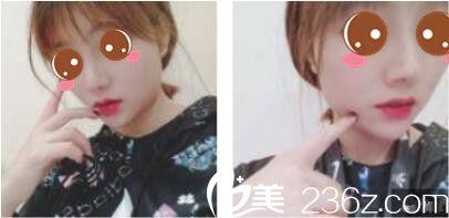 在上海双孖找张中航做了鼻综合之后,从此开启了我的美颜时代