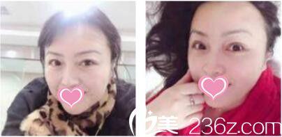 50岁的阿姨找上海双孖张中航做面部线雕后看着比同龄人年轻七八岁