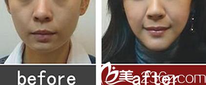 翡睿医疗美容瘦脸针案例前后对比