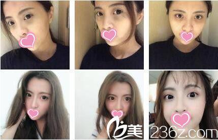 上海佰思爱医疗美容门诊部张潇面部埋线真人案例