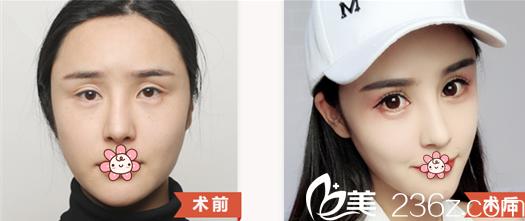 四川华美紫馨双眼皮术前术后对比