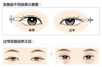 双眼皮不同宽度效果示意图