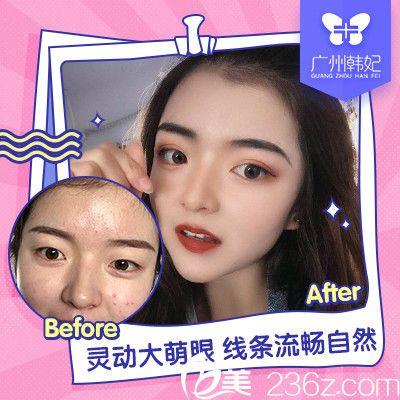 广州韩妃李军军双眼皮案例图片