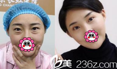 北京长虹医院于智宏祛眼袋+双眼皮案例