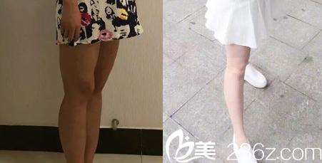 北京长虹医院赵宏伟大腿吸脂案例