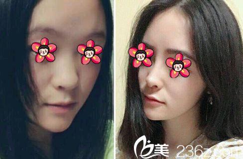 义乌张小红鼻综合隆鼻案例