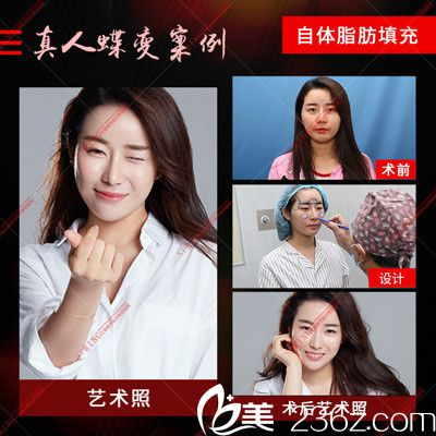 深圳江南春天李钢做的自体脂肪填充案例