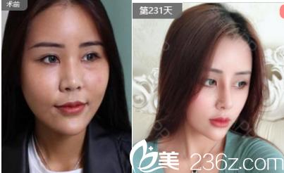 青岛诺德医学美容医院刘昆鹏假体隆鼻案例