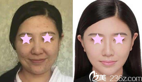 太原刘晋元下颌角整形前后对比图