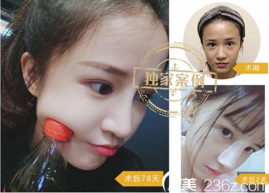 深圳蒳美迩朱灿博士肋软骨隆鼻案例图片