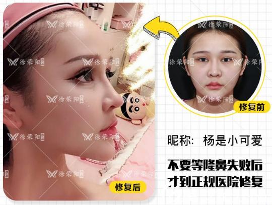 深圳徐荣阳做的隆鼻失败修复案例