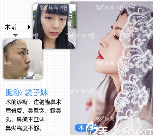 深圳艾妍徐荣阳隆鼻案例对比图片