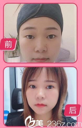 在南京千美做双眼皮+开眼角案例
