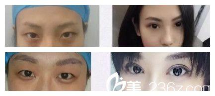 廊坊韩誉国都医疗整形医院双眼皮案例