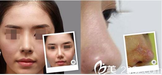 广州海峡谭新东鼻子奥美定取出案例