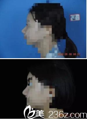 侧面鼻子图