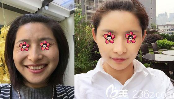 杭州静港程卫民自体脂肪填充案例