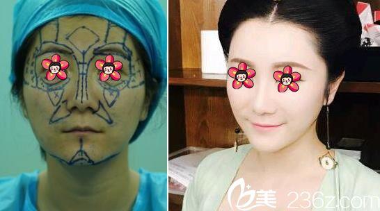 杭州芙艾郭晓波自体脂肪填充和祛眼袋案例