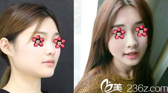 杭州芙艾唐旭玻尿酸丰下巴和瘦脸针案例