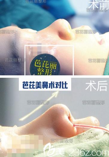 广西南宁芭芘丽鼻综合案例