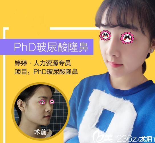 北京丽都曹令玻尿酸隆鼻案例
