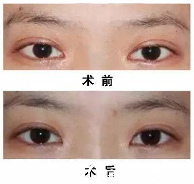 韩国eve整形医院郑润载内眼角修复真人前后对比