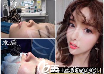 广州婕熹卡整形医院肋软骨隆鼻案例