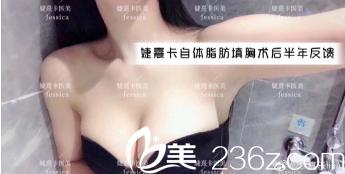 广州婕熹卡医美自体脂肪隆胸案例