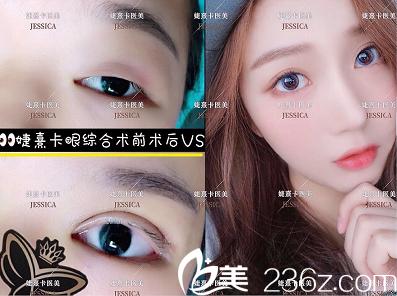 广州婕熹卡医疗美容医院双眼皮案例