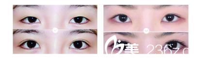 到南京逆时空做眼部整形案例对比