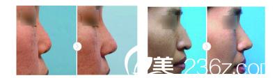 南京逆时空做鼻部整形案例对比
