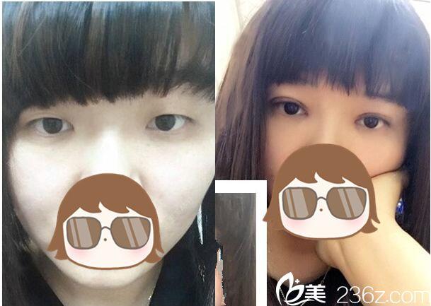 武汉协和双眼皮修复前后对比