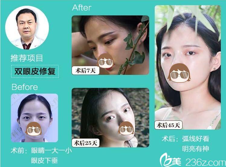 武汉同济双眼皮修复一个多月案例