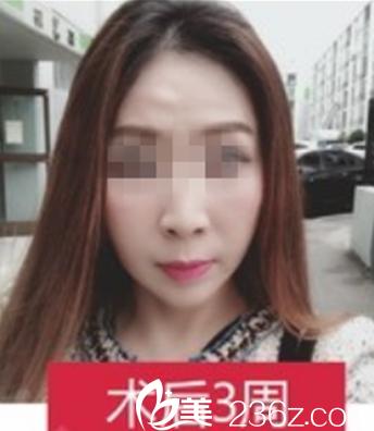 35岁美女分享在南宁星范做了全面部自体脂肪填充后看上去年轻了5岁