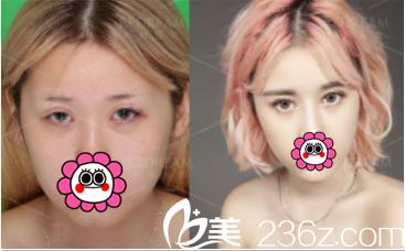北京薇琳董香君医生双眼皮修复案例