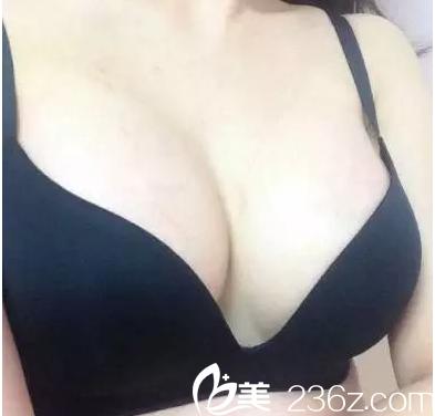 公开我在北京煤医整形做内窥镜娜绮丽假体隆胸效果和价格