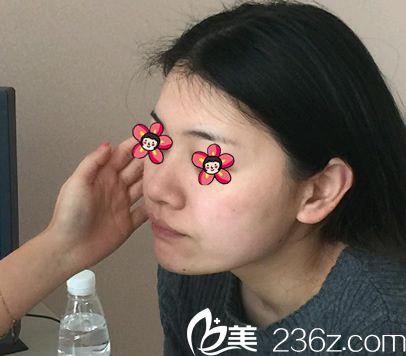 杭州芬迪医疗美容诊所李莺术前照片1