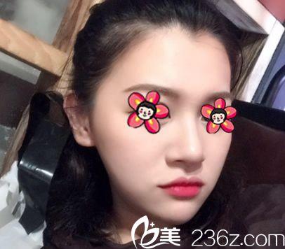 杭州芬迪医美面部线雕案例1个月效果