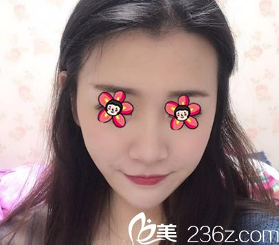 杭州芬迪医疗美容诊所李莺术后照片1