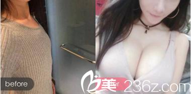 北京精艺吉美隆胸案例